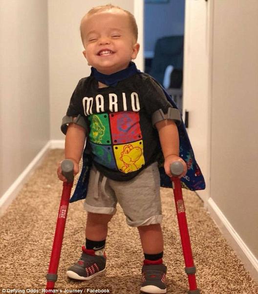 永利网上娱乐两岁患病男童用拐杖成功行走与狗诉说喜悦