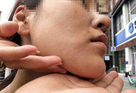 辽宁25岁女孩背着家人去整容 术后