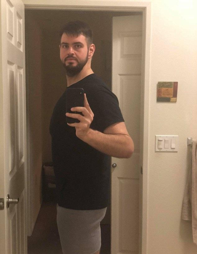 美小伙为爱减重270斤 做手术去除多余松弛皮肤