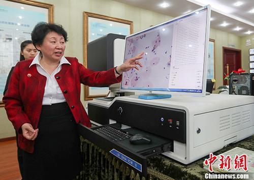 中国宫颈癌筛查技术获世卫组织资格认证