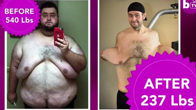 美国小伙为爱减重270斤 做手术去除多余松弛皮肤