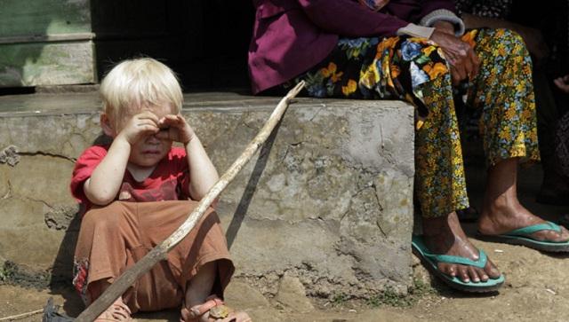 走进印尼白化病村:他们生活在阴暗的孤岛