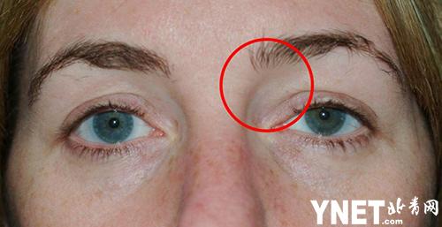 英国女孩14岁时弄丢了隐形 28年后医生竟从她眼中取出