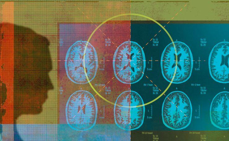 核磁共振时间长太痛苦? 美大学要让人工智能来帮忙
