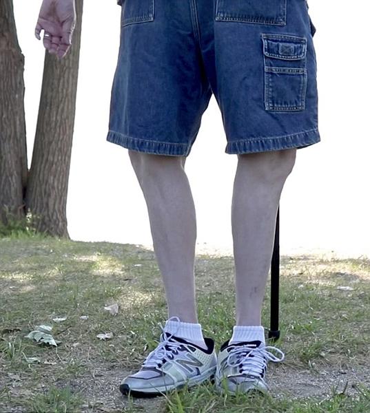美男子双脚可旋转180度 拥有2项世界纪录