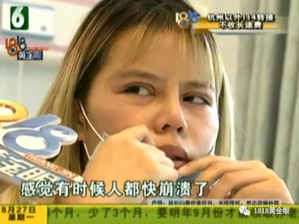 姑娘做完鼻综合手术后崩溃:呼吸太困难了