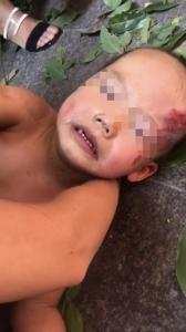 四川一3岁男童从17楼坠下奇迹生还:被树枝挡住(图)