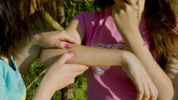 对抗扁虱五部曲 有效防止皮肤感染