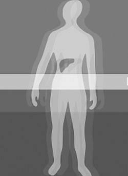 细胞疗法能替代器官移植吗