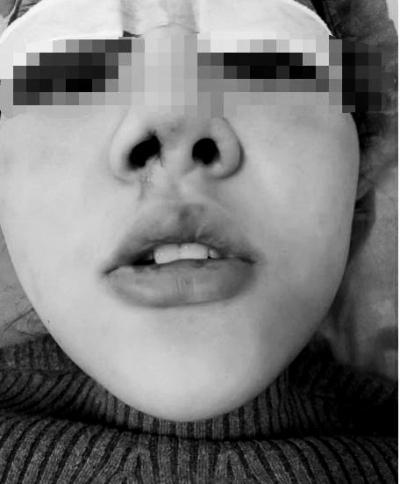 大三女生贷款整容 术后感染且俩鼻孔一大一小(图)