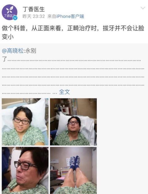 调皮!高晓松遭丁香医生科普:拔牙并不会让脸变小