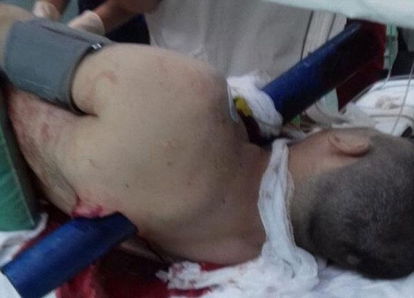 奇迹!俄男子遇车祸被粗钢管穿胸而过仍生还