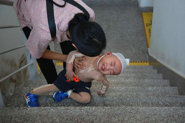 男童重度烫伤 妈妈逼其爬48层楼锻炼