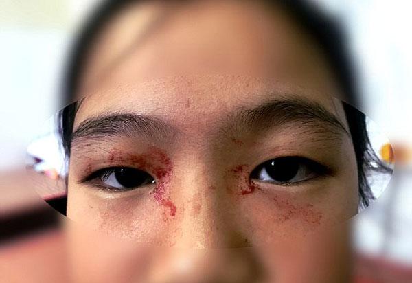 越南11岁女孩因期末复习压力大流出血汗