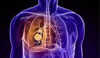 """肺癌诊治有了""""上海标准"""",多项研究成果提升患者生存率"""