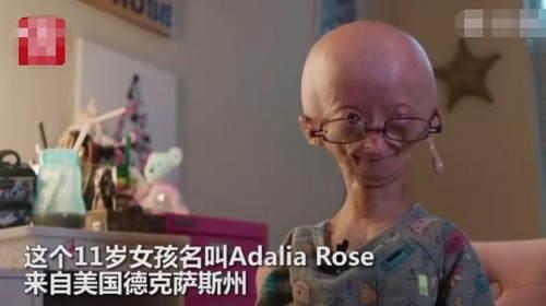 美国早衰症女孩坐拥1400万粉丝 形如外星人却坚强乐观