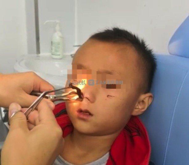 册亨 8 岁男童频繁出鼻血 原是蚂蟥在鼻内生存了近一个月