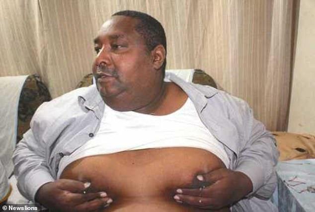 肯尼亚牧师患脑瘤 胸部竟流乳汁