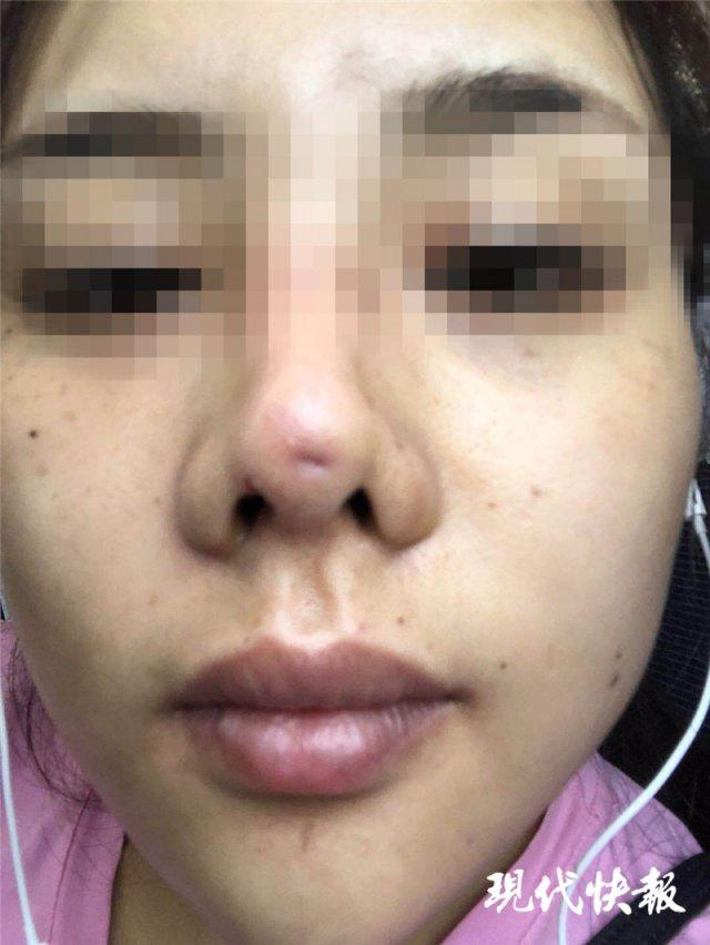假体滑出鼻尖 90后姑娘隆鼻整成了