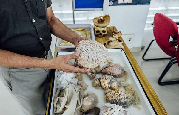 印博物馆展出数百具人脑标本 游客可用手触摸