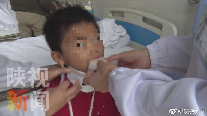 9岁女孩遭父亲吊起来打颈椎脱位 父亲:打失手了