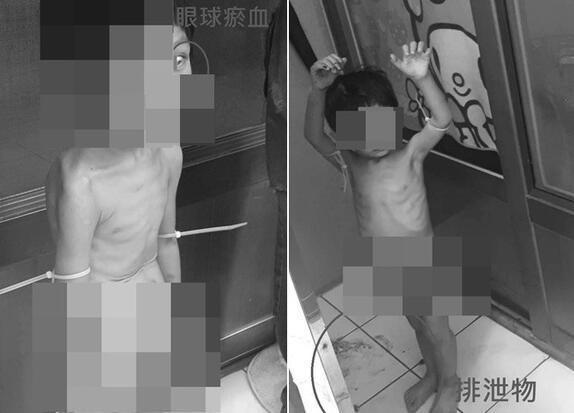台湾一男童遭生父全裸吊绑阳台虐待 饿到捡粪便吃