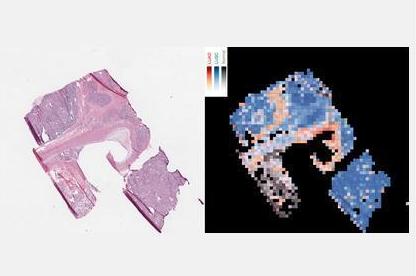 AI在医疗领域的新应用:肺癌诊断准确率达97%