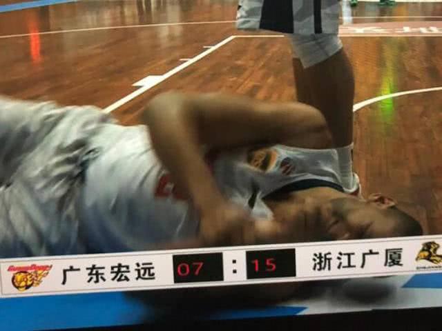 广东莫里斯骨折:倒地后左手撑地导致手部骨折