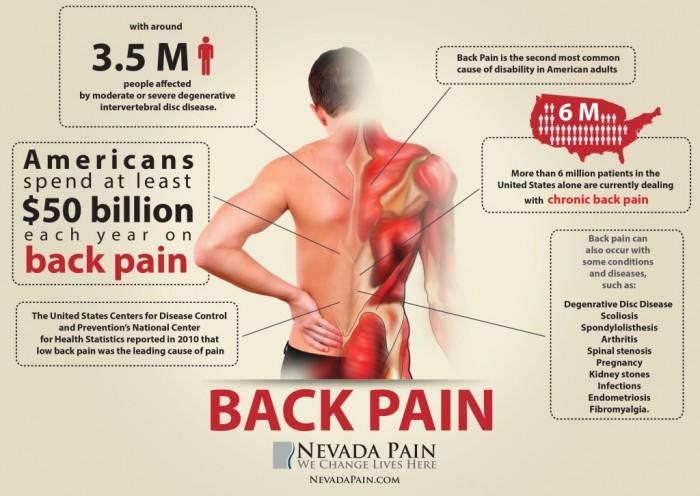 科学家发现人体3种基因与背部疼痛密切相关
