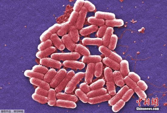 """抗生素耐药性与""""超级细菌"""":未来我们可能死于普通感染"""