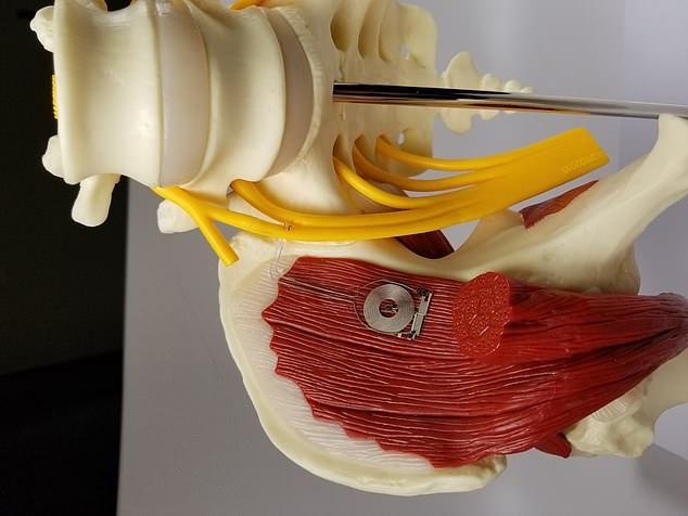 科学家发明小型神经修复装置 可在人体内降解