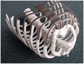 韩国医疗机构成功完成一例3D打印胸骨移植手术