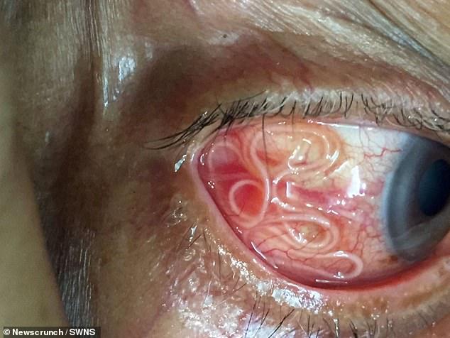 印度男子眼部感染寄生虫  15cm长度惊呆医生