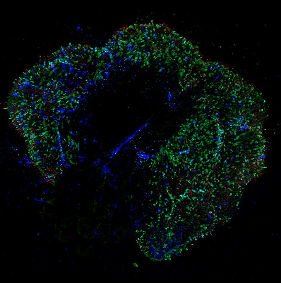 科学家揭秘:让你看见颜色的细胞是怎么长出来的