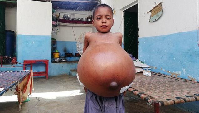巴基斯坦9岁男孩肚子膨胀到沙滩球三倍大