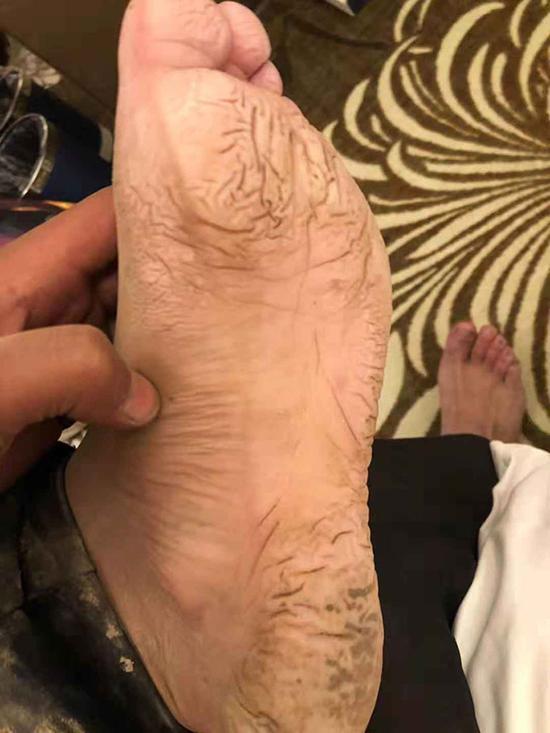 在泥泞环境中工作4天,监测员尼布的脚浮肿变形。昌都市水文局图