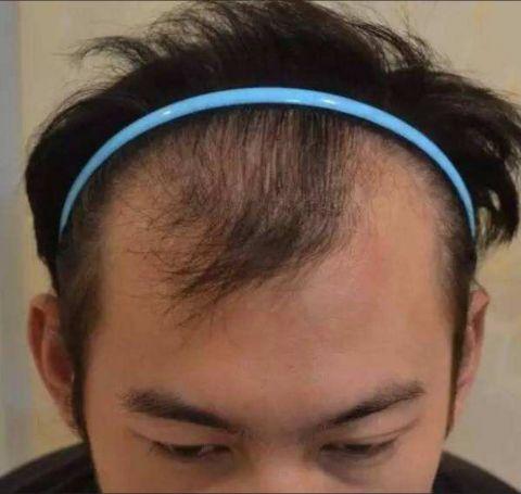 陈坤发文保持发量保持好心情,网友:请告知,拯救95后脱发人群