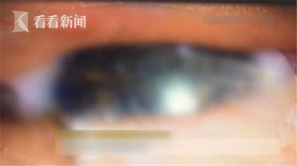男婴接触宠物眼睛不适 医生从他左眼中取出11条虫