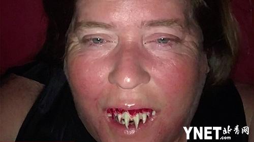 女子万圣节扮吸血鬼贴假牙 取不下来竟不得不拔掉真牙