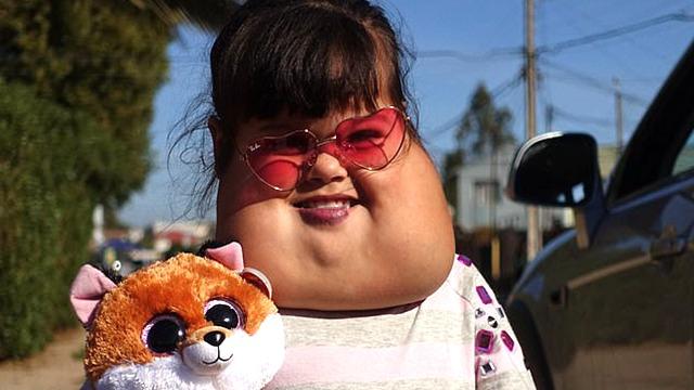 智利5岁女孩面部长巨型肿瘤