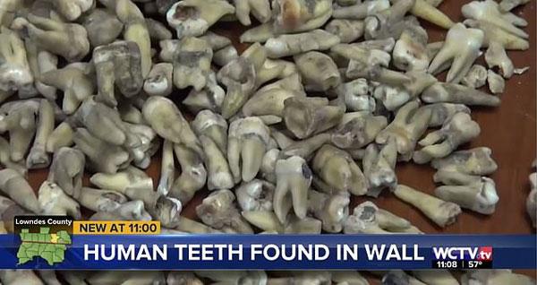 美建筑工翻新大厦时在墙内发现千颗人类牙齿