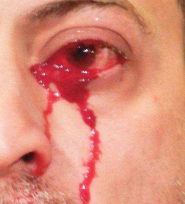 意大利男子眼睛流血泪 其眼皮下有血管瘤