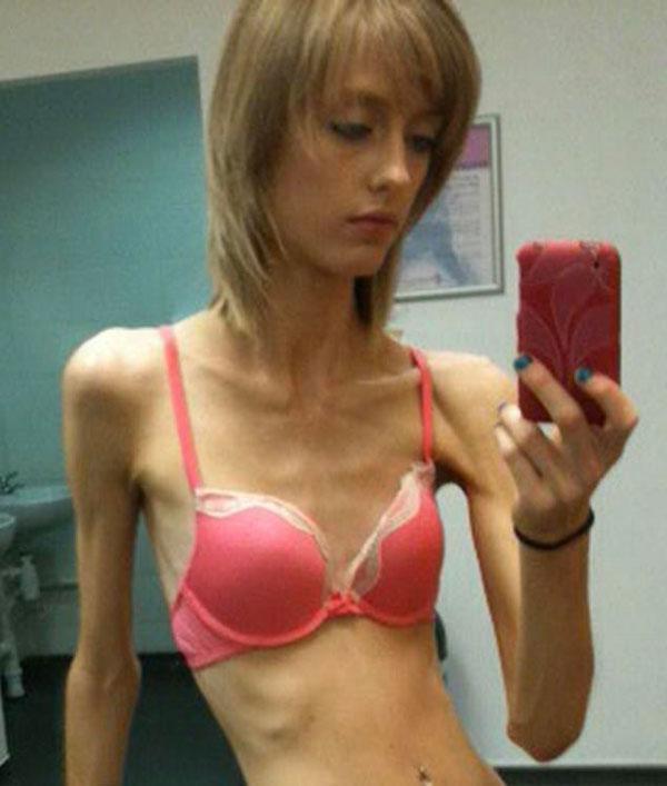 英女模特曾患厌食症 退出T台成私人健身教练