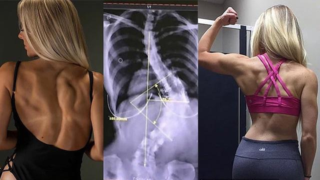女孩拒绝手术治疗脊椎侧弯 通过健身矫正变网红