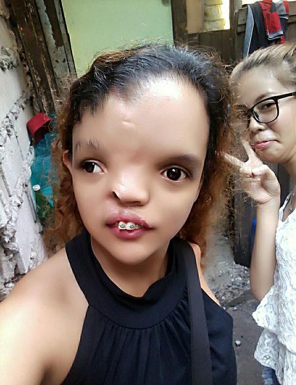 天籁之音!菲律宾畸形女子因歌唱找到自信