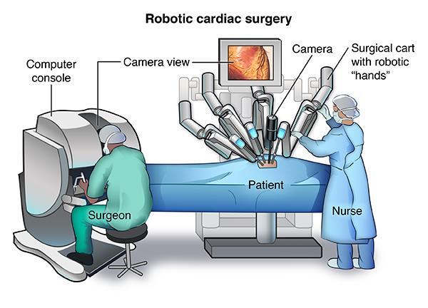 英国首例机器人心瓣手术:机器暴走 病人不治身亡
