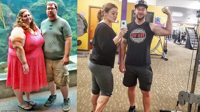 美女子减重140公斤后皮肤松弛 手术切除3公斤赘皮
