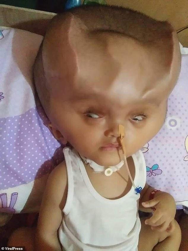 菲律宾水脑畸形婴儿术后头部呈怪异形状