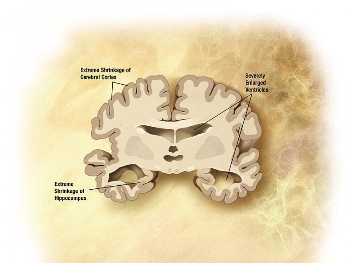 科学家:超声波扫描颈部 可预测患痴呆症风险