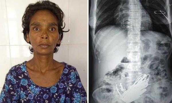 印度女子腹痛 医生竟取出3公斤金属